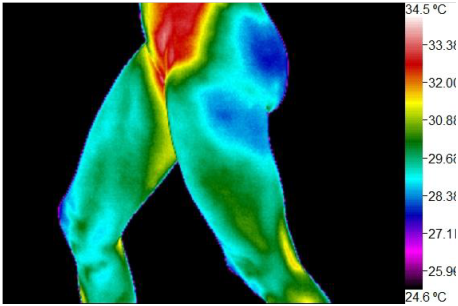 Willness Thermography Atlanta
