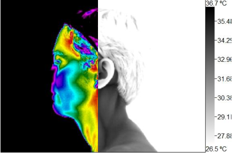Wellness Thermography Atlanta